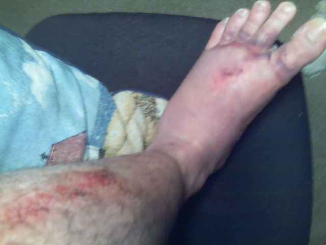 Ever had 500 pounds fall on your foot?