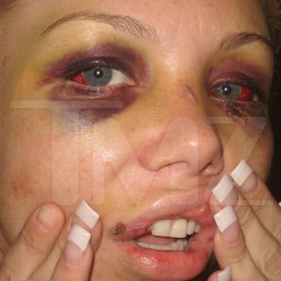 ShamWow guy beat up a hooker