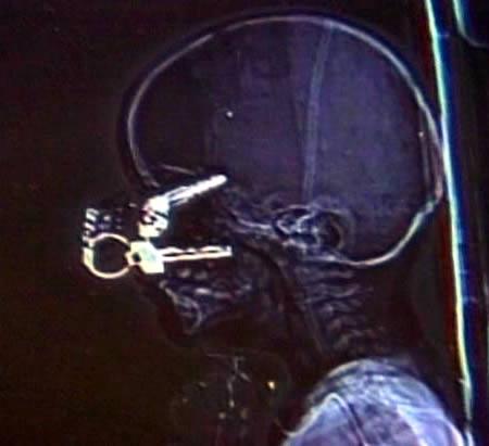 15 Most Bizarre X-Rays