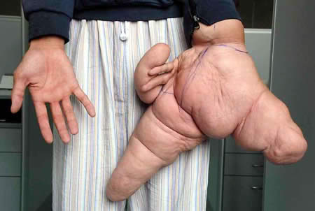 10 Most Extreme Body Parts