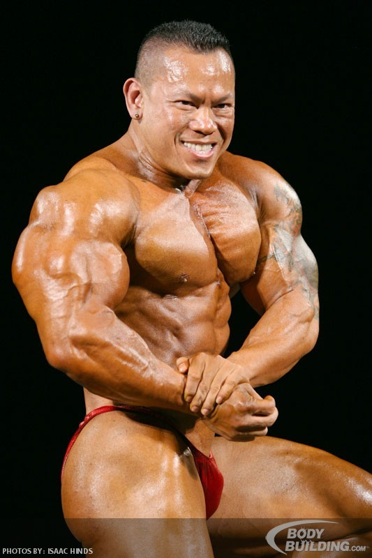 IFBB Pro Bodybuilders who have used Synthol