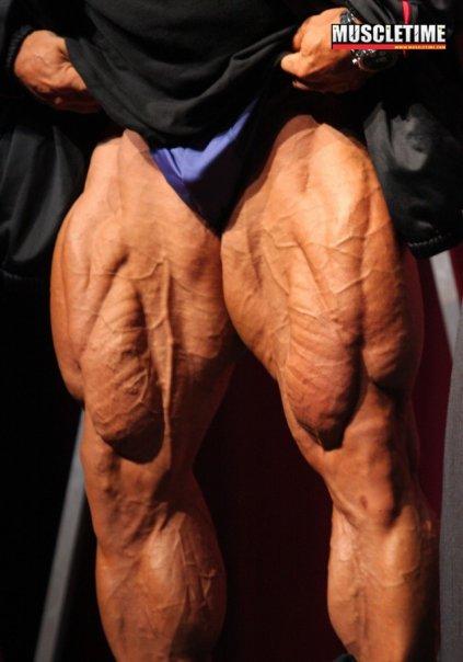 Branch Warren's legs