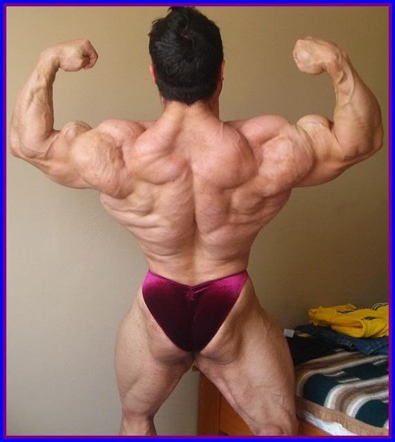 Pic of Eduardo Correa 4 weeks out of the O