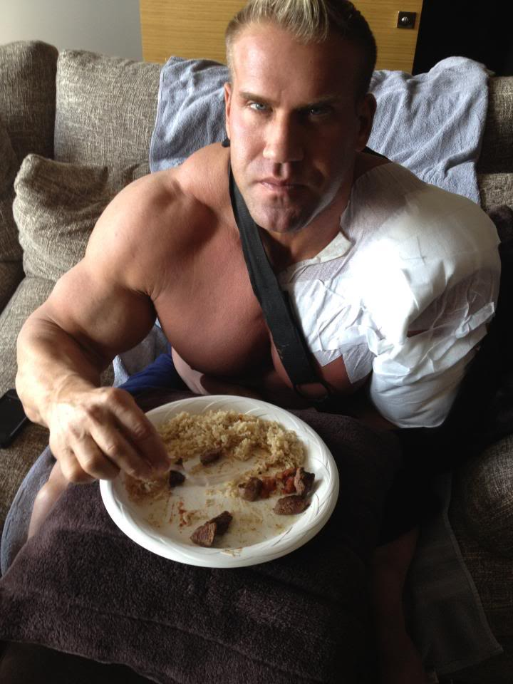 Jay Cutler after bicep surgery